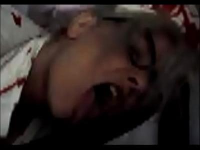 Evil Nurse Zoe -Halloween