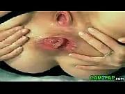 thumb webcam girl huge anal gape prolapse porn