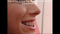 Sandra Skinny Teen Braces Anal Facial