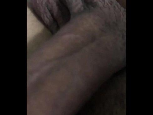 Socando #10's Thumb